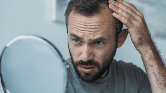 man looking at thinning hair in mirror
