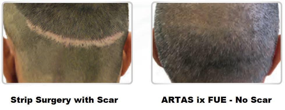 Strip Surgery vs. ARTAS ix FUE
