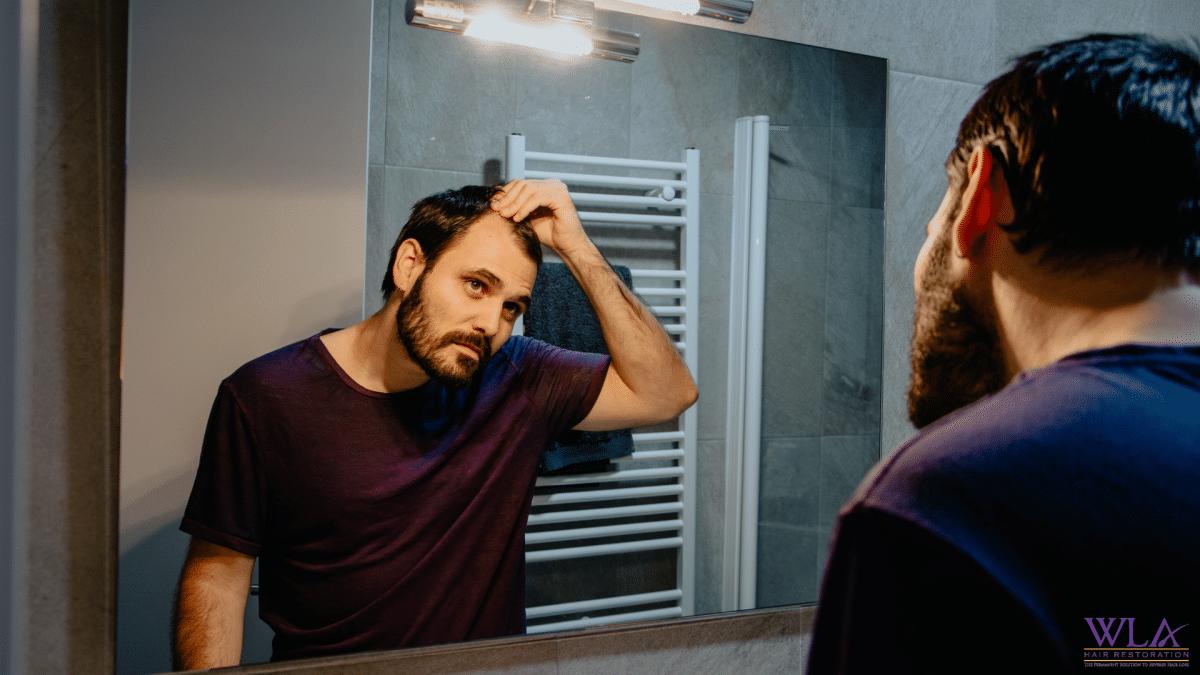 man looking at receding hair in the mirror