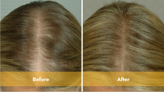 blonde haired woman top of head before and after laser light therapy