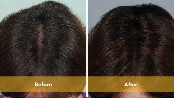 black haired woman top of head before and after laser light therapy
