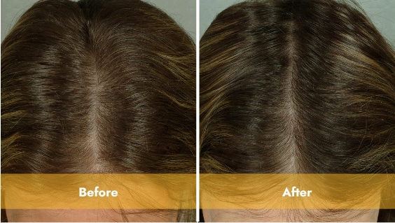brown haired woman top of head before and after laser light therapy