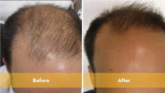 Before and After prp treatment with lasercap